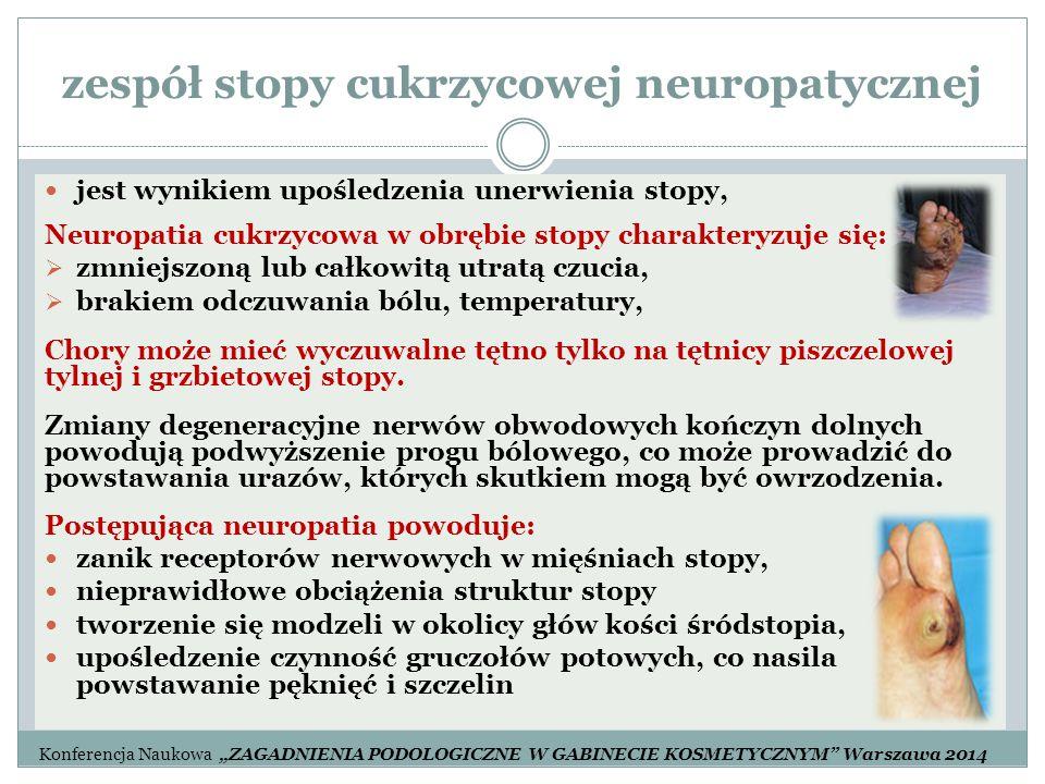 zespół stopy cukrzycowej neuropatycznej