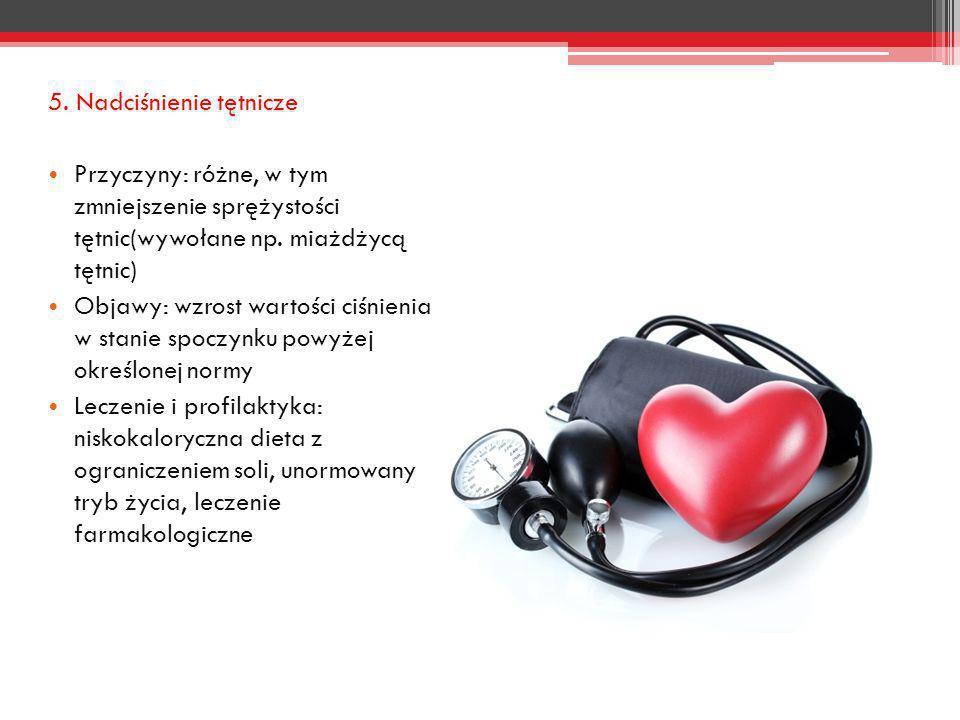 5. Nadciśnienie tętnicze