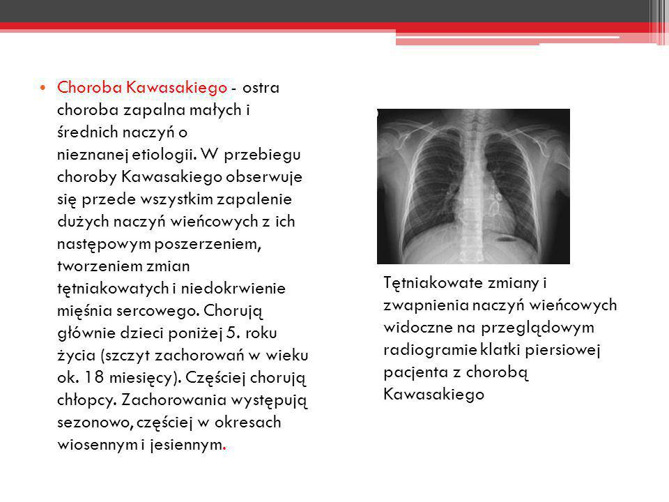 Choroba Kawasakiego - ostra choroba zapalna małych i średnich naczyń o nieznanej etiologii. W przebiegu choroby Kawasakiego obserwuje się przede wszystkim zapalenie dużych naczyń wieńcowych z ich następowym poszerzeniem, tworzeniem zmian tętniakowatych i niedokrwienie mięśnia sercowego. Chorują głównie dzieci poniżej 5. roku życia (szczyt zachorowań w wieku ok. 18 miesięcy). Częściej chorują chłopcy. Zachorowania występują sezonowo, częściej w okresach wiosennym i jesiennym.