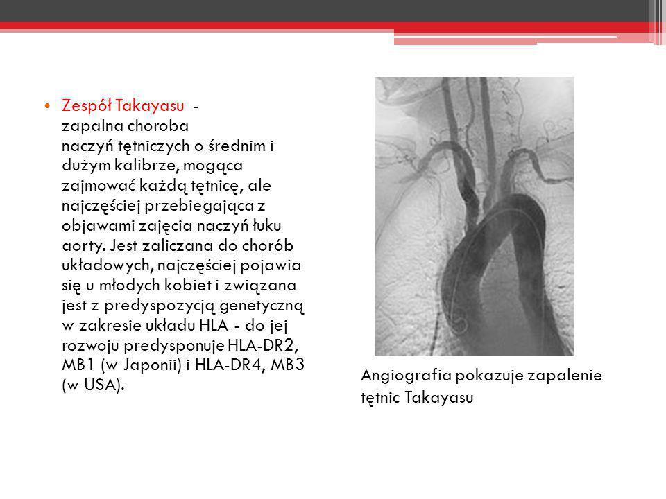 Zespół Takayasu - zapalna choroba naczyń tętniczych o średnim i dużym kalibrze, mogąca zajmować każdą tętnicę, ale najczęściej przebiegająca z objawami zajęcia naczyń łuku aorty. Jest zaliczana do chorób układowych, najczęściej pojawia się u młodych kobiet i związana jest z predyspozycją genetyczną w zakresie układu HLA - do jej rozwoju predysponuje HLA-DR2, MB1 (w Japonii) i HLA-DR4, MB3 (w USA).