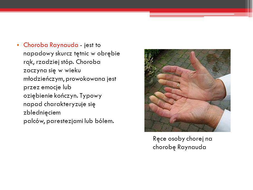 Choroba Raynauda - jest to napadowy skurcz tętnic w obrębie rąk, rzadziej stóp. Choroba zaczyna się w wieku młodzieńczym, prowokowana jest przez emocje lub oziębienie kończyn. Typowy napad charakteryzuje się zblednięciem palców, parestezjami lub bólem.