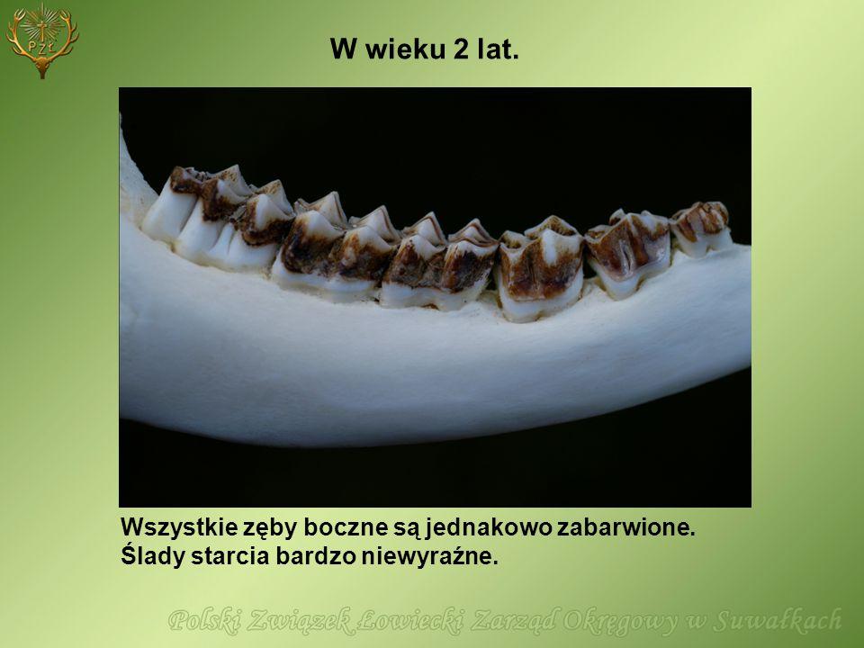 W wieku 2 lat. Wszystkie zęby boczne są jednakowo zabarwione.