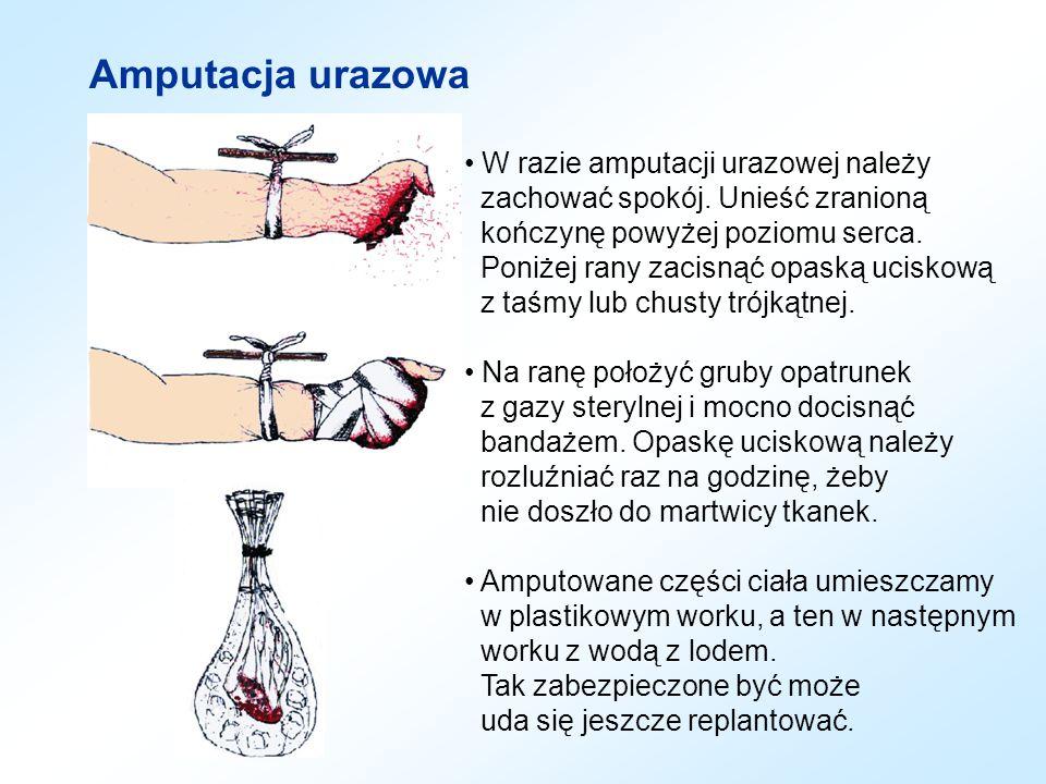 Amputacja urazowa W razie amputacji urazowej należy