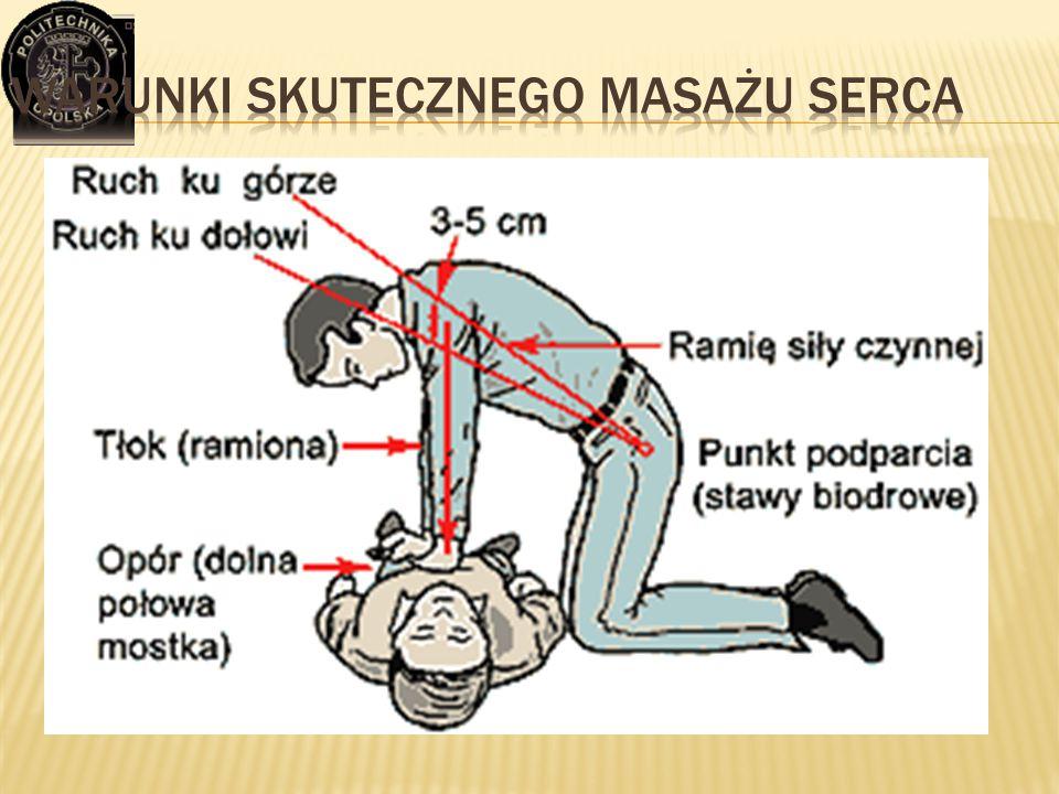 Warunki skutecznego masażu serca