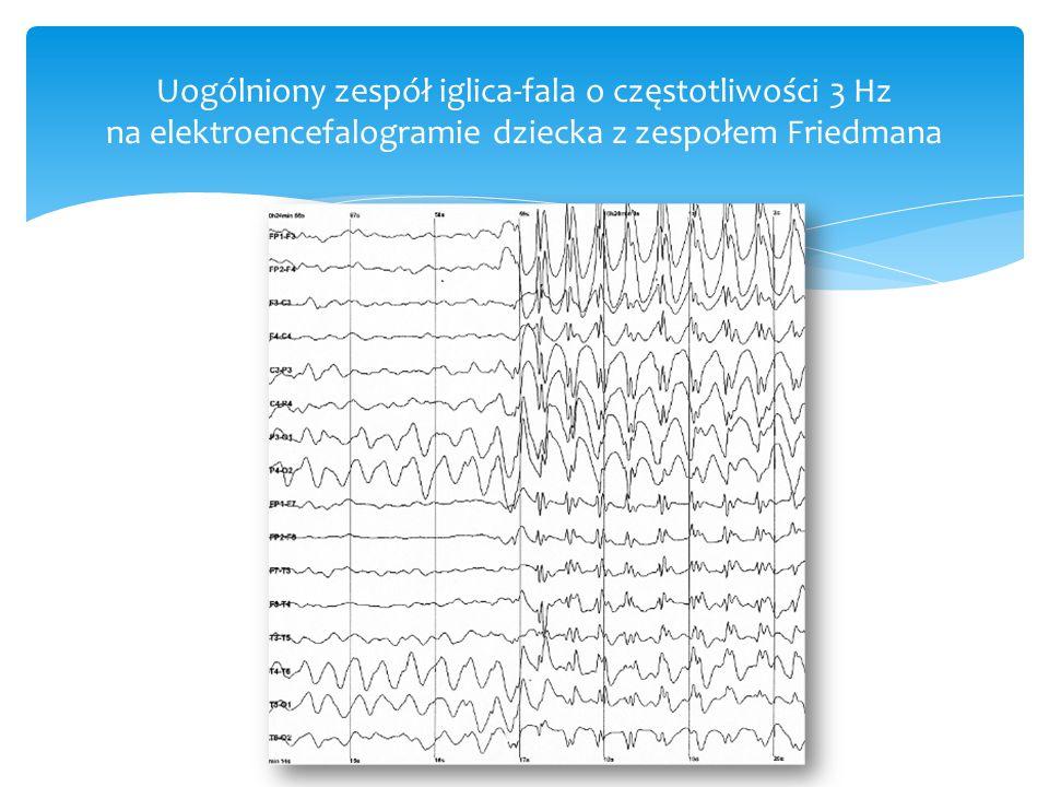 Uogólniony zespół iglica-fala o częstotliwości 3 Hz na elektroencefalogramie dziecka z zespołem Friedmana