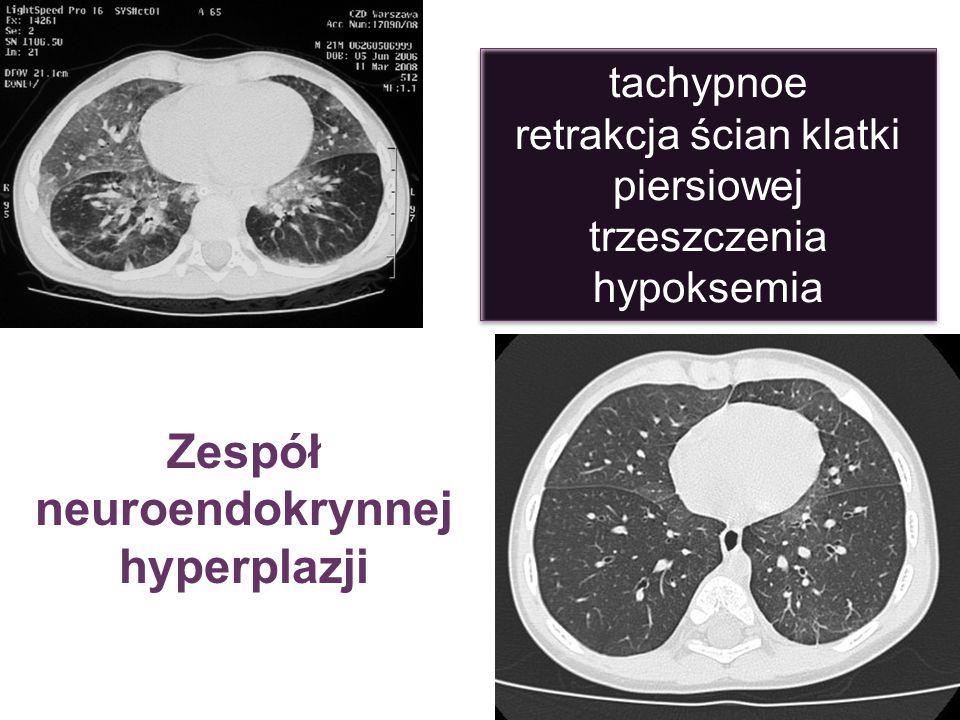 Zespół neuroendokrynnej hyperplazji