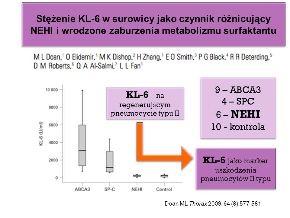 KL-6 – na regenerującym pneumocycie typu II