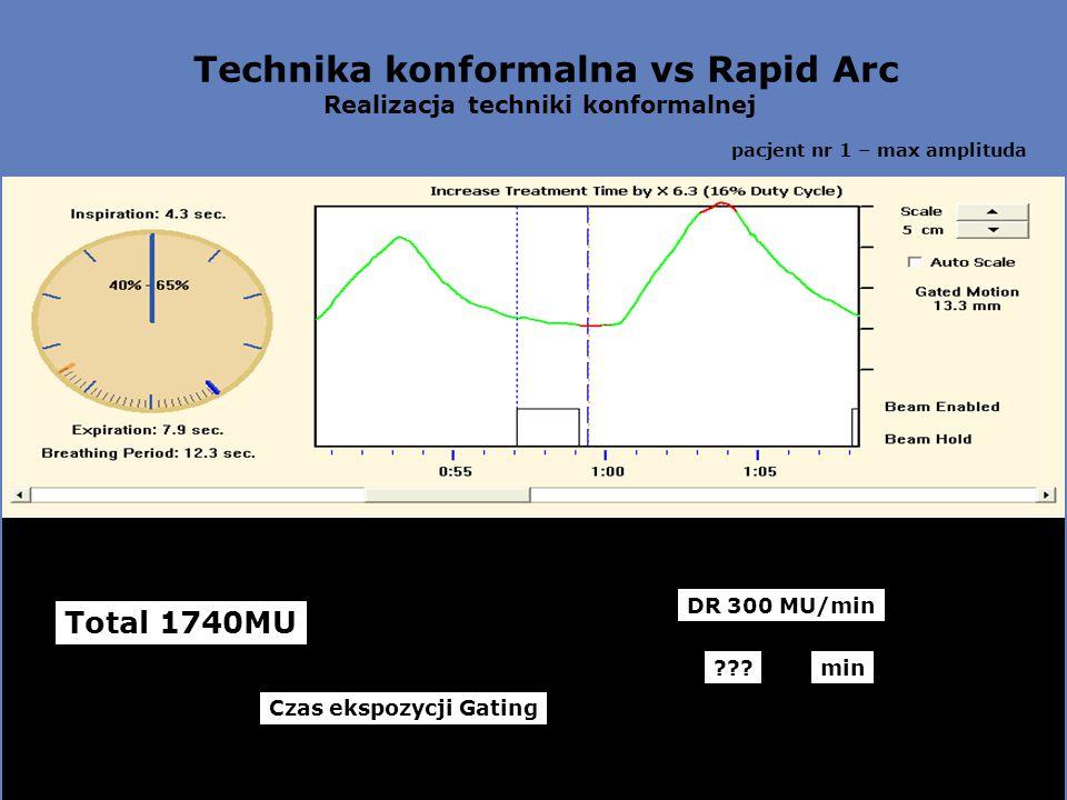 Technika konformalna vs Rapid Arc Realizacja techniki konformalnej