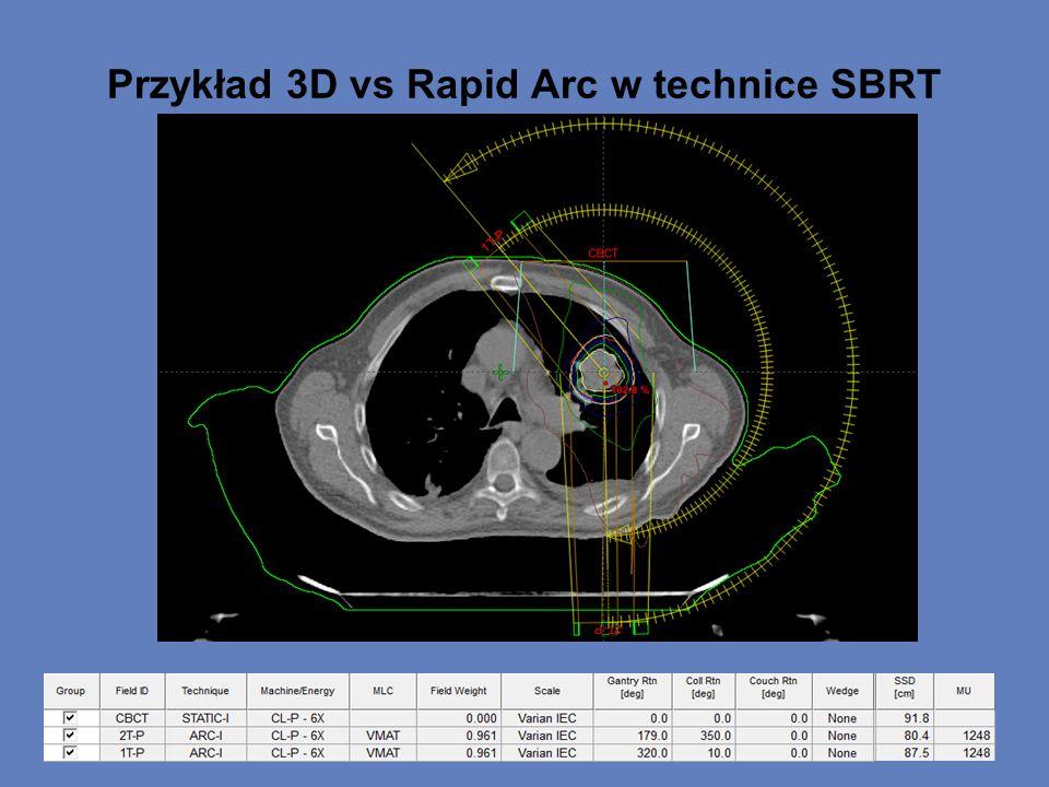Przykład 3D vs Rapid Arc w technice SBRT