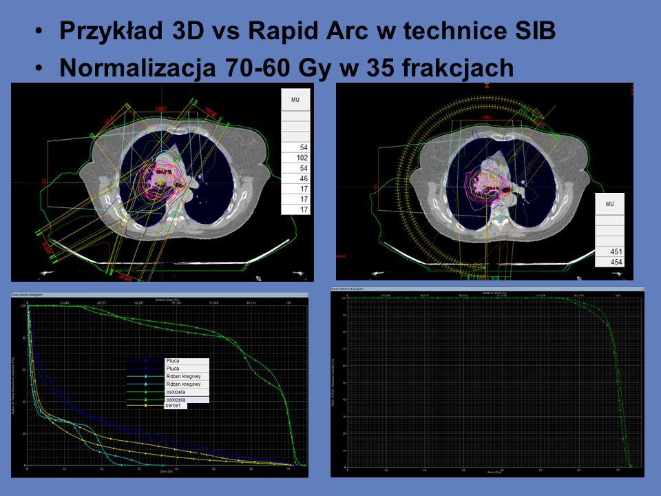 Przykład 3D vs Rapid Arc w technice SIB