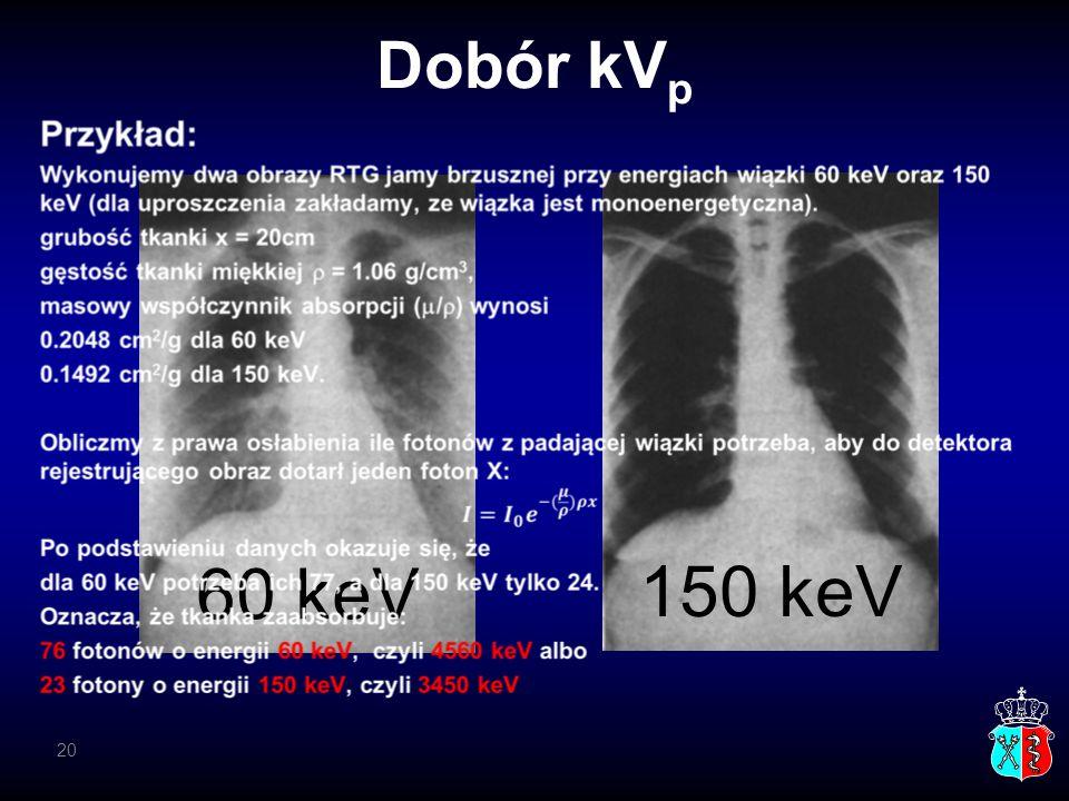 Dobór kVp 60 keV 150 keV