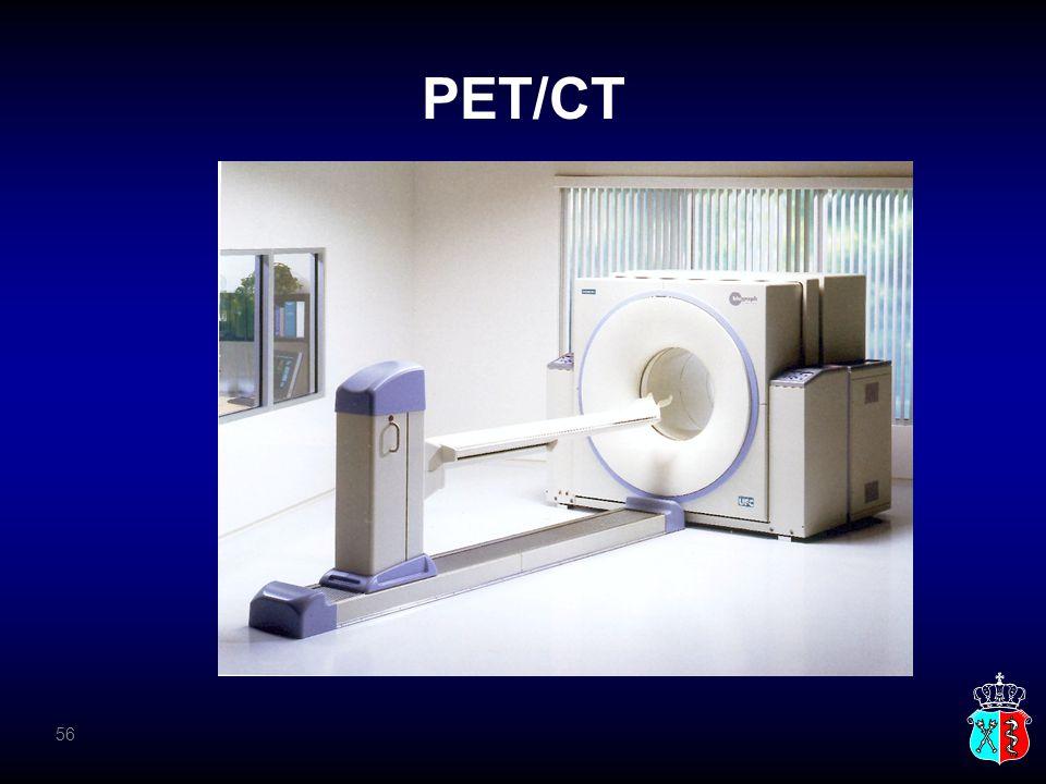 PET/CT