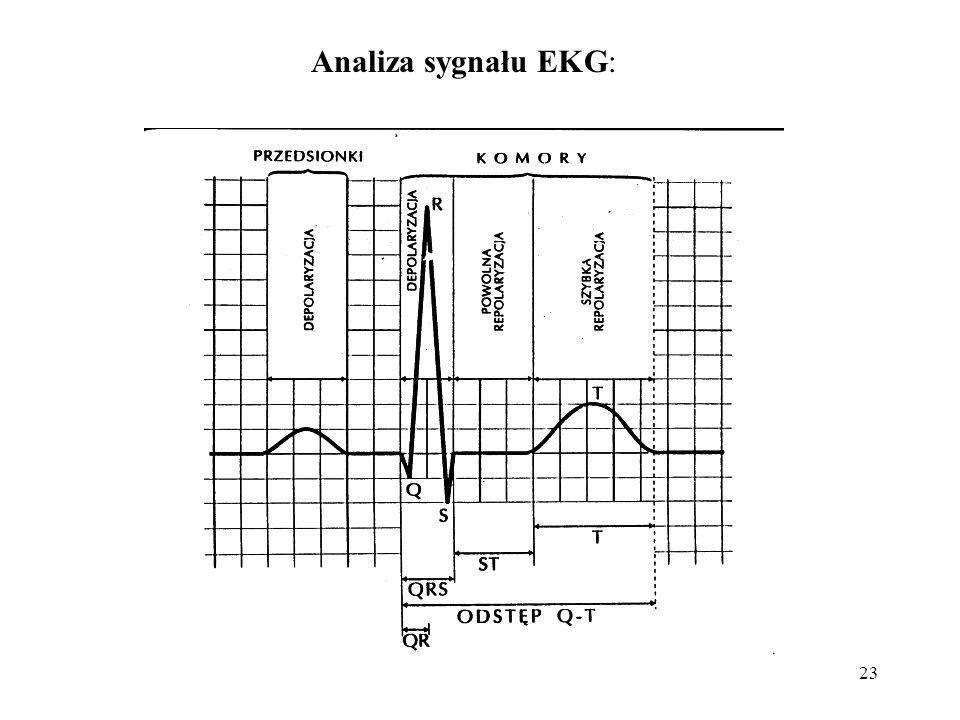 Analiza sygnału EKG: