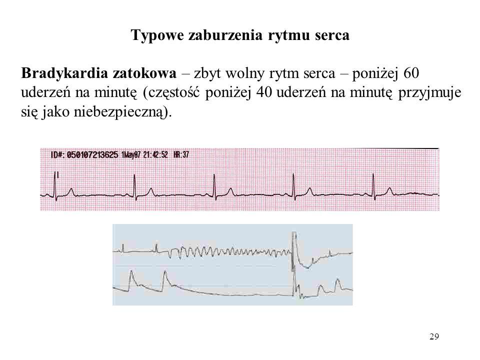 Typowe zaburzenia rytmu serca