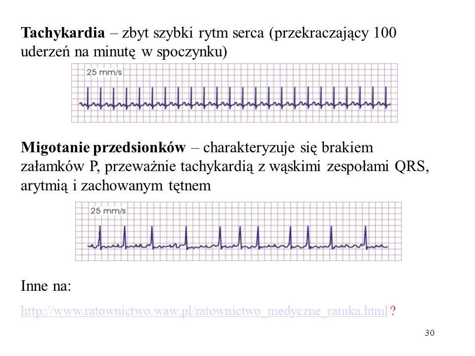 Tachykardia – zbyt szybki rytm serca (przekraczający 100 uderzeń na minutę w spoczynku)