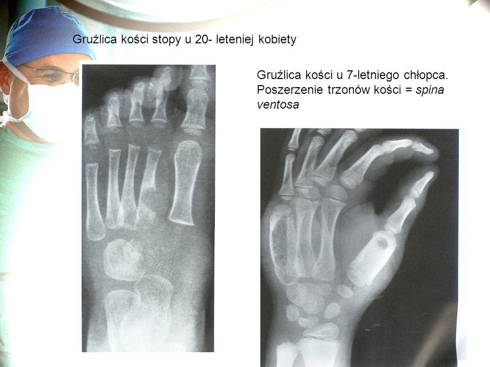 Gruźlica kości stopy u 20- leteniej kobiety