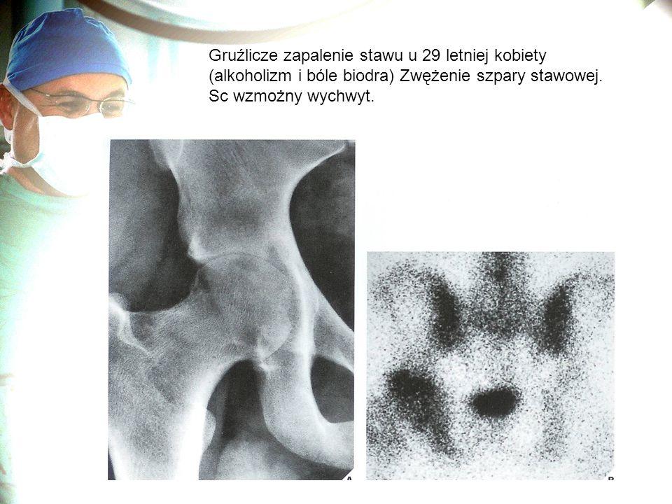 Gruźlicze zapalenie stawu u 29 letniej kobiety (alkoholizm i bóle biodra) Zwężenie szpary stawowej.