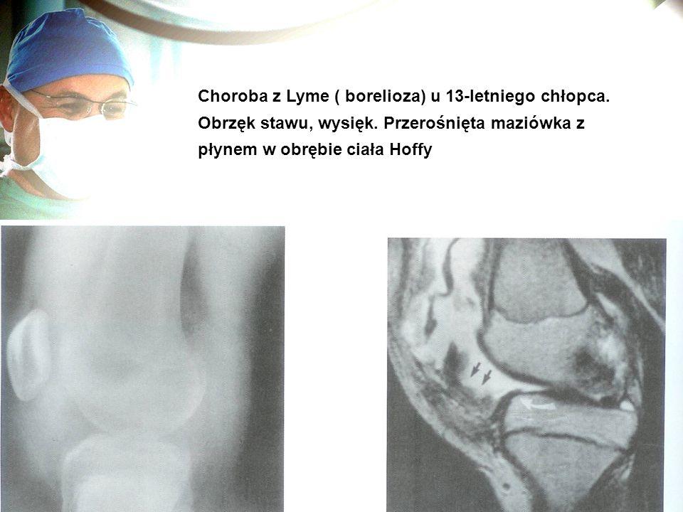 Choroba z Lyme ( borelioza) u 13-letniego chłopca.