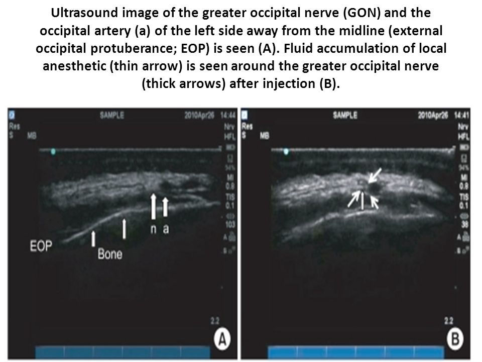 Ultrasound image of the greater occipital nerve (GON) and the occipital artery (a) of the left side away from the midline (external occipital protuberance; EOP) is seen (A).