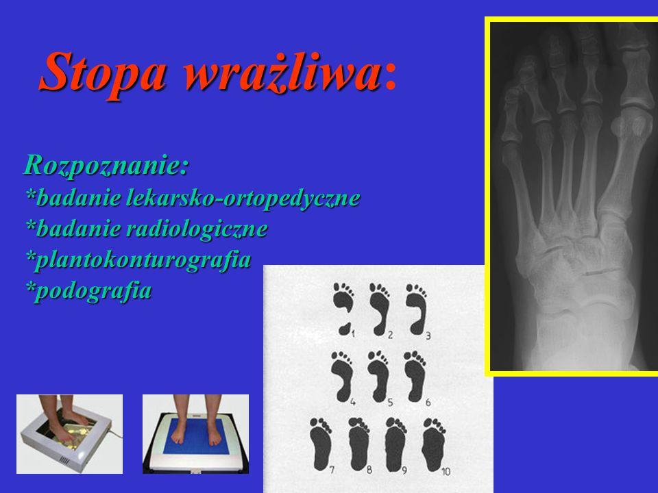 Stopa wrażliwa: Rozpoznanie: *badanie lekarsko-ortopedyczne