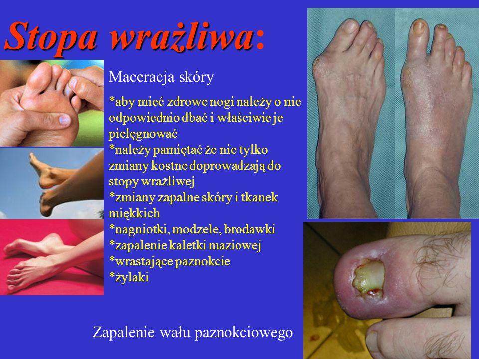 Stopa wrażliwa: Maceracja skóry Zapalenie wału paznokciowego