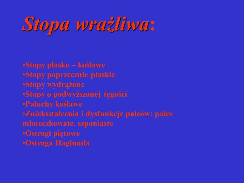 Stopa wrażliwa: Stopy płasko – koślawe Stopy poprzecznie płaskie