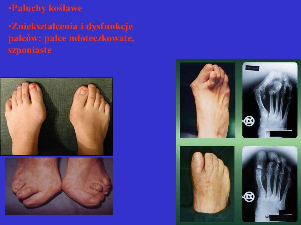 Paluchy koślawe Zniekształcenia i dysfunkcje palców: palce młoteczkowate, szponiaste