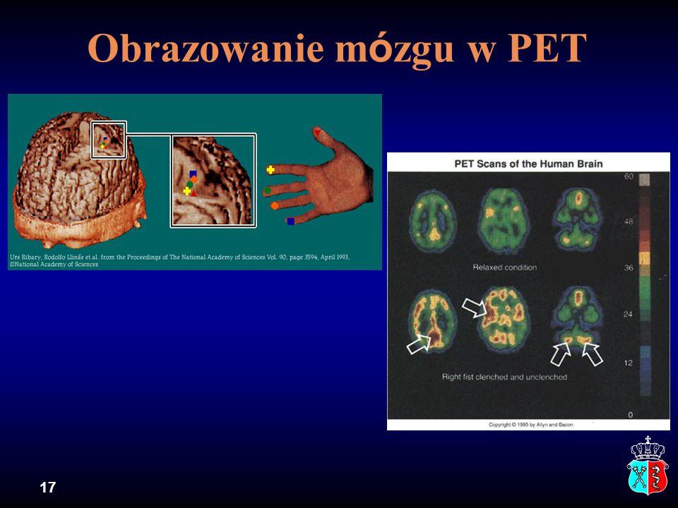 Obrazowanie mózgu w PET