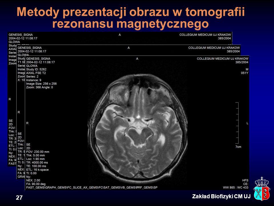 Metody prezentacji obrazu w tomografii rezonansu magnetycznego