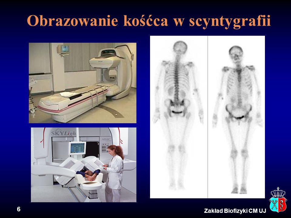 Obrazowanie kośćca w scyntygrafii