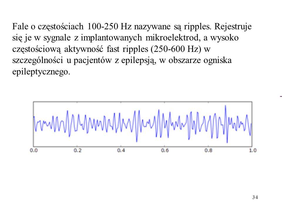 Fale o częstościach 100-250 Hz nazywane są ripples