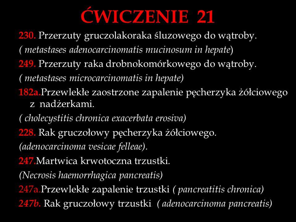 ĆWICZENIE 21