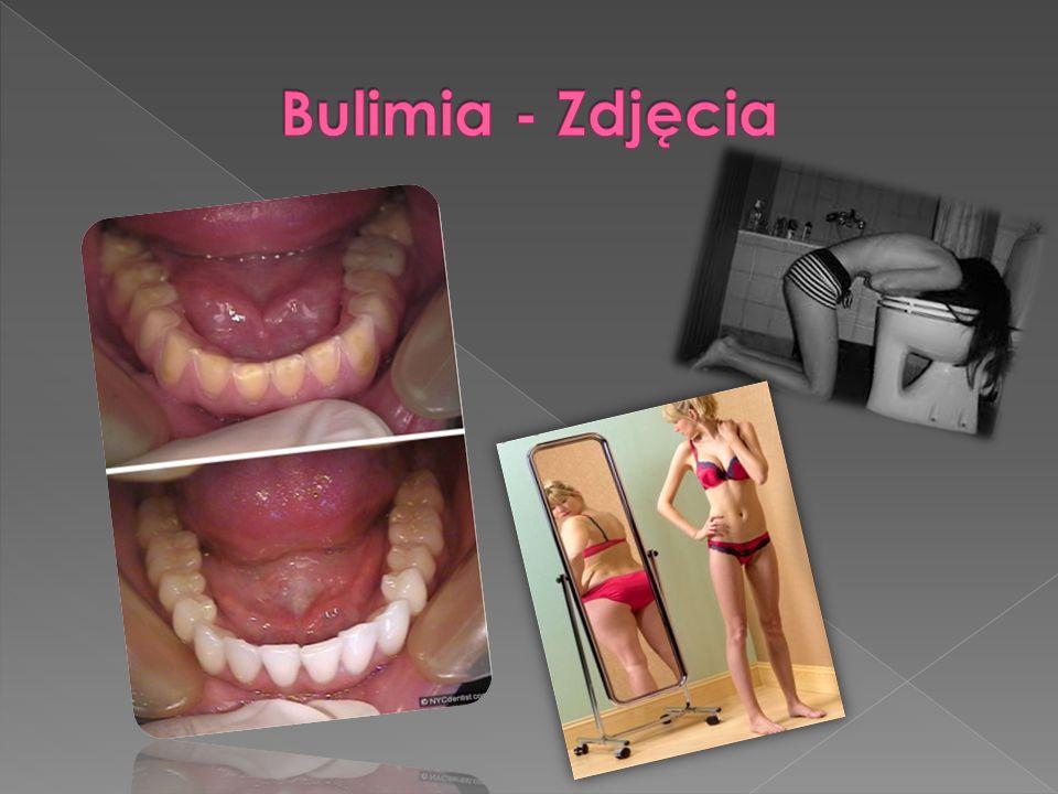 Bulimia - Zdjęcia