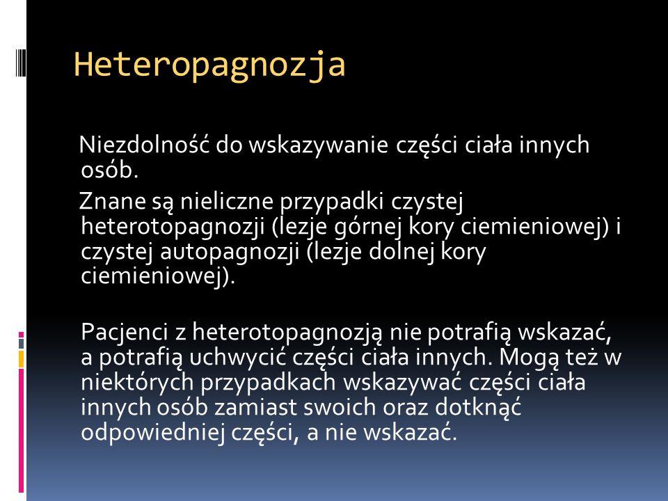Heteropagnozja