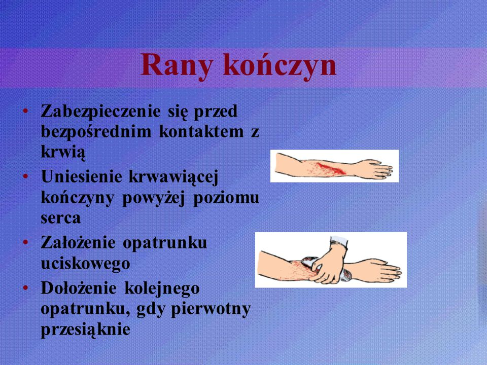 Rany kończyn Zabezpieczenie się przed bezpośrednim kontaktem z krwią