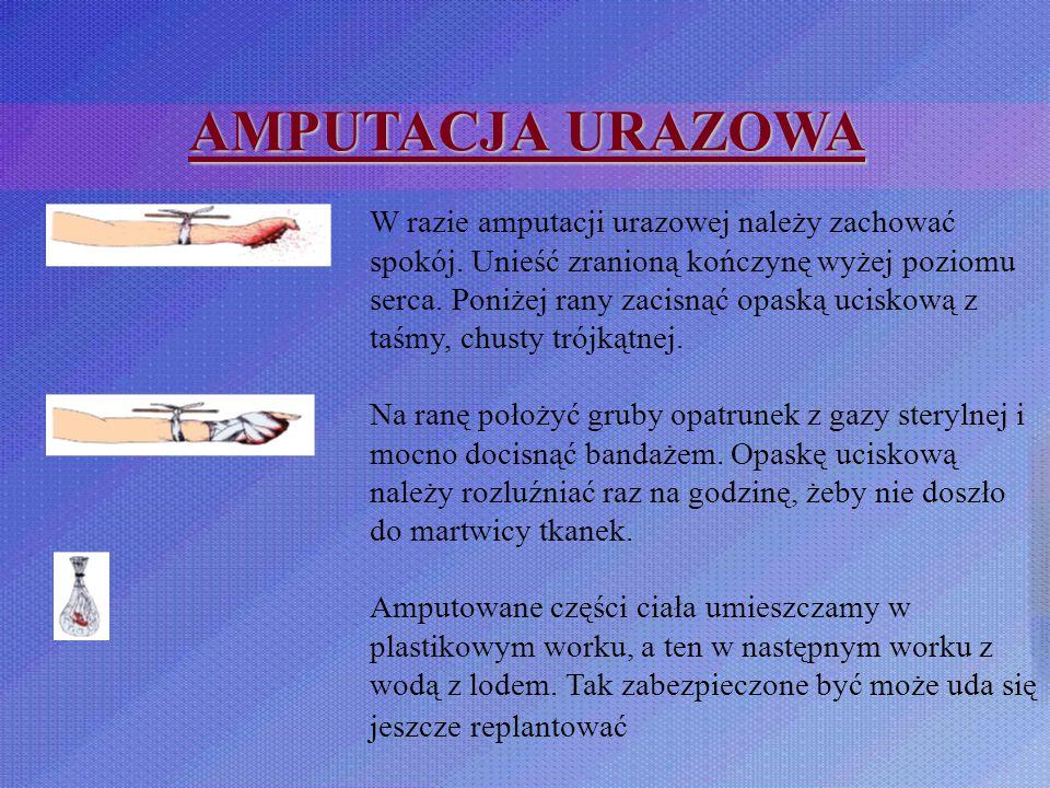 AMPUTACJA URAZOWA