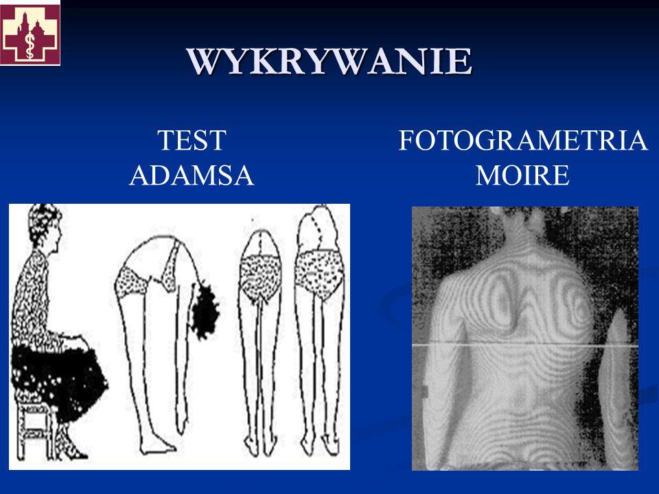 WYKRYWANIE TEST ADAMSA FOTOGRAMETRIA MOIRE