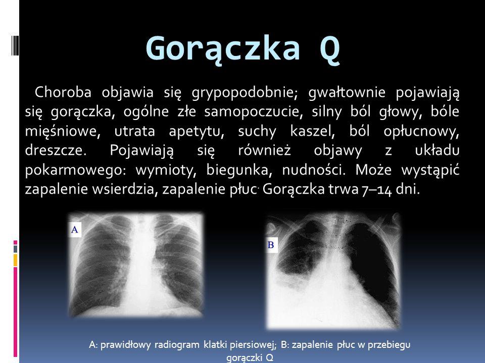Gorączka Q