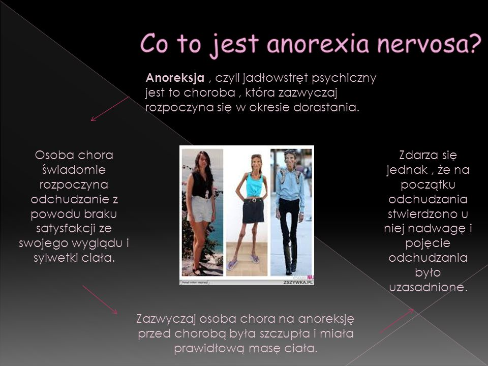 Co to jest anorexia nervosa
