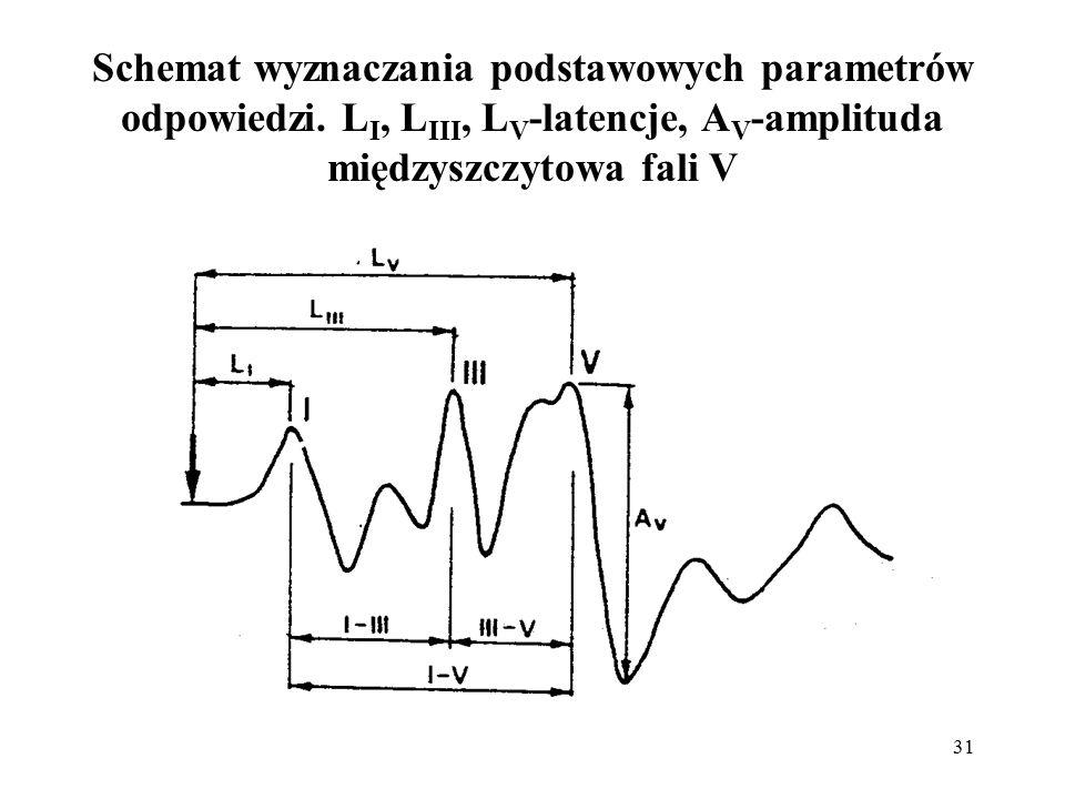 Schemat wyznaczania podstawowych parametrów odpowiedzi