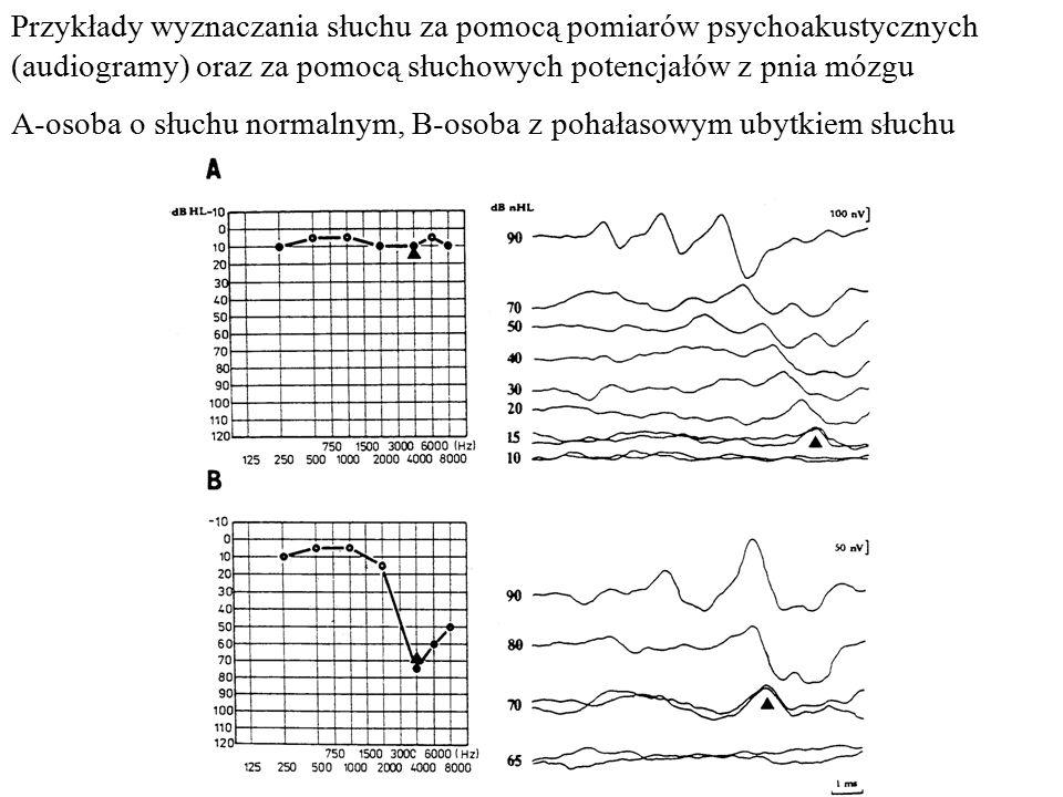 Przykłady wyznaczania słuchu za pomocą pomiarów psychoakustycznych (audiogramy) oraz za pomocą słuchowych potencjałów z pnia mózgu