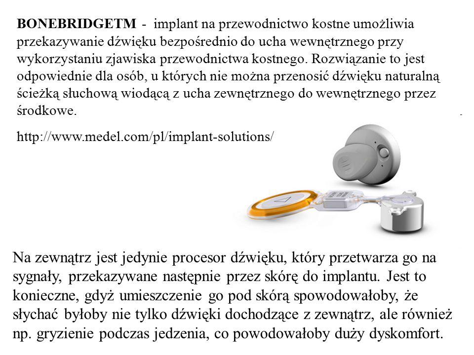 BONEBRIDGETM - implant na przewodnictwo kostne umożliwia przekazywanie dźwięku bezpośrednio do ucha wewnętrznego przy wykorzystaniu zjawiska przewodnictwa kostnego. Rozwiązanie to jest odpowiednie dla osób, u których nie można przenosić dźwięku naturalną ścieżką słuchową wiodącą z ucha zewnętrznego do wewnętrznego przez środkowe.