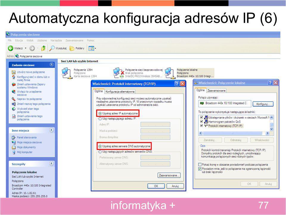 Automatyczna konfiguracja adresów IP (6)