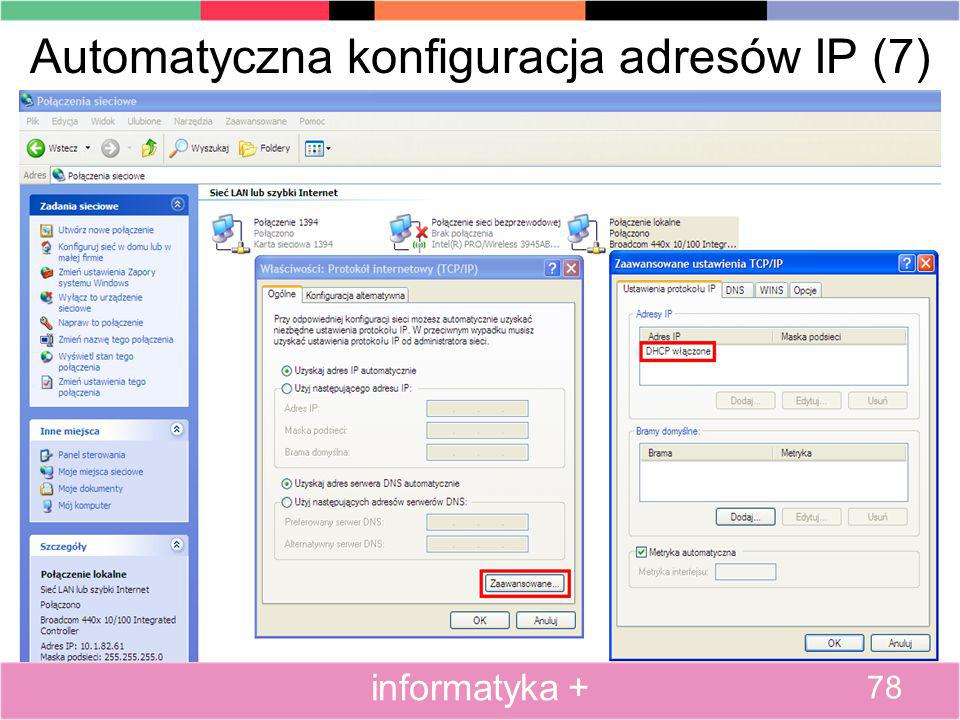 Automatyczna konfiguracja adresów IP (7)