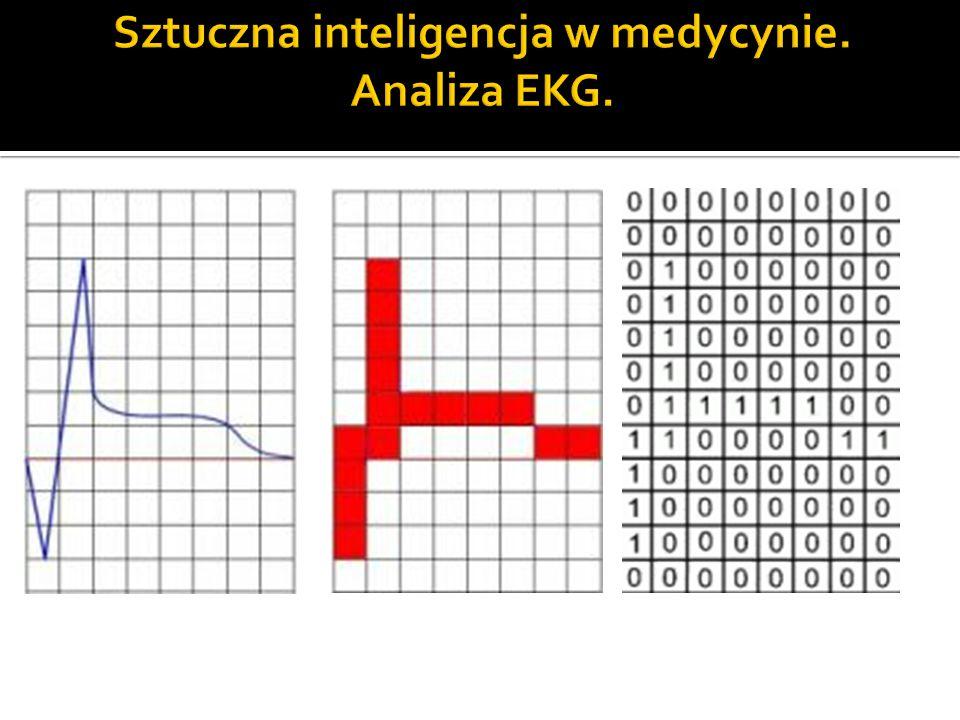 Sztuczna inteligencja w medycynie. Analiza EKG.