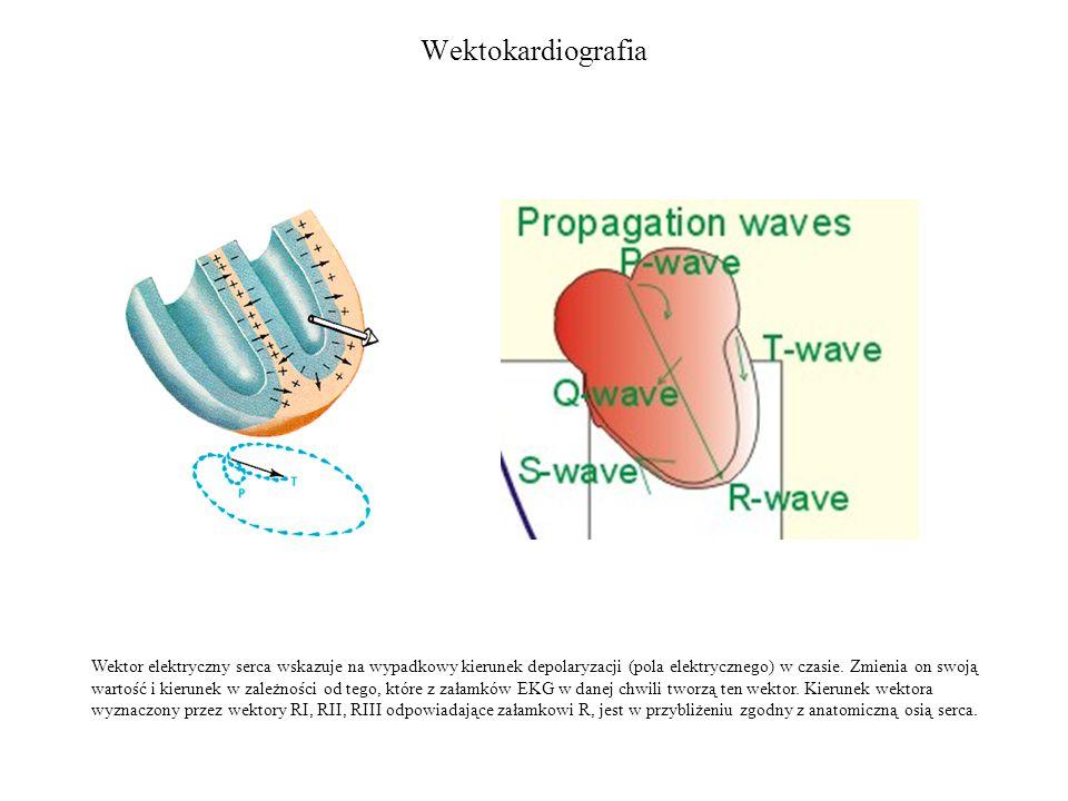 Wektokardiografia