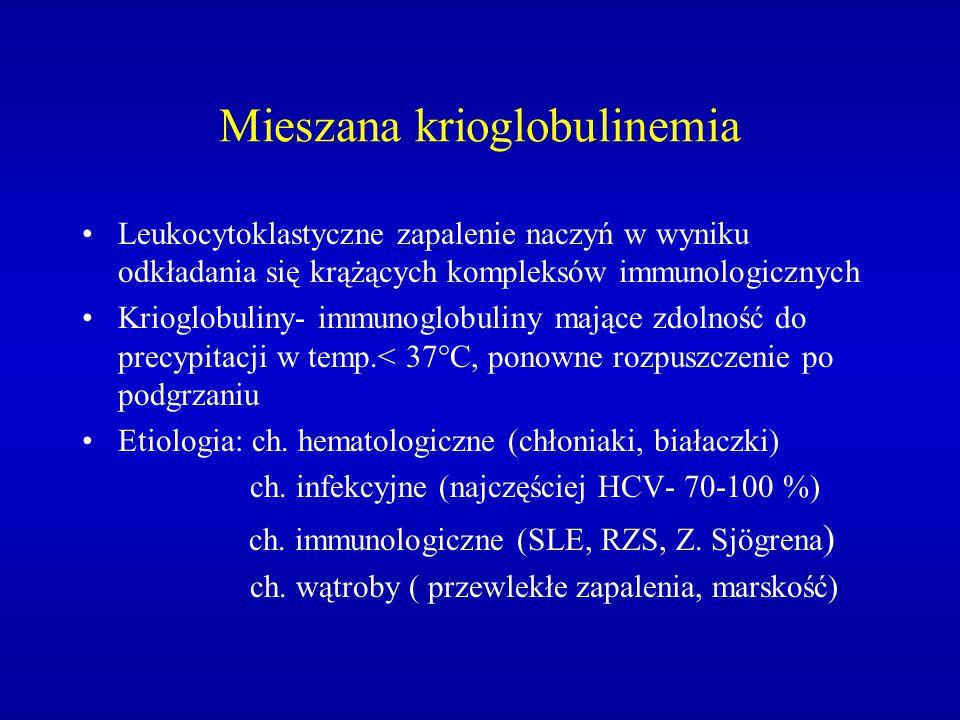Mieszana krioglobulinemia