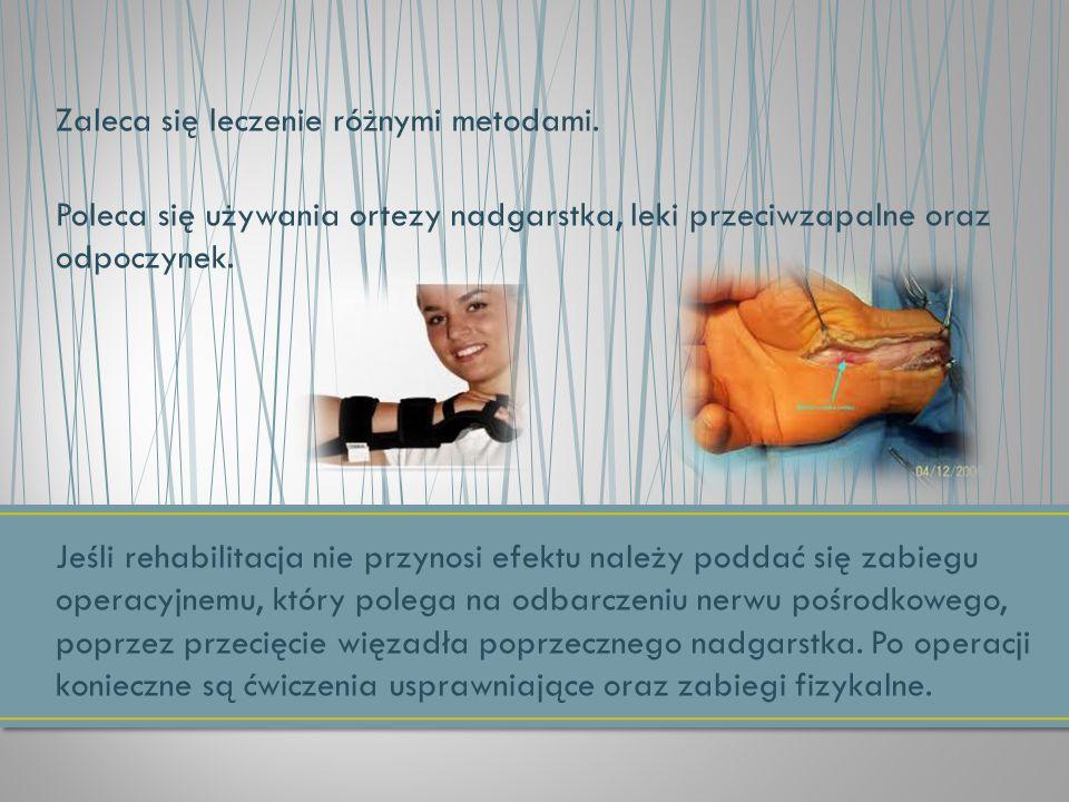 Zaleca się leczenie różnymi metodami.