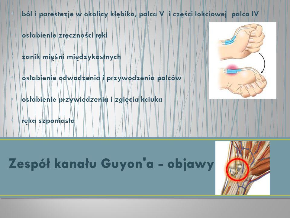 Zespół kanału Guyon a - objawy