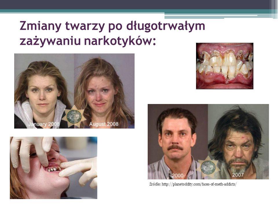 Zmiany twarzy po długotrwałym zażywaniu narkotyków: